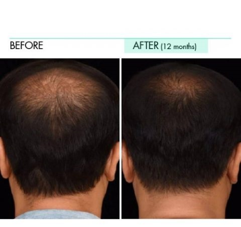 sliq clinic regenera men before after